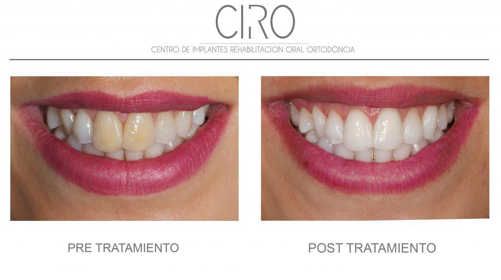 Blanqueamiento externo en dientes oscurecidos por traumatismo - Dra. Isabel Giráldez de Luis