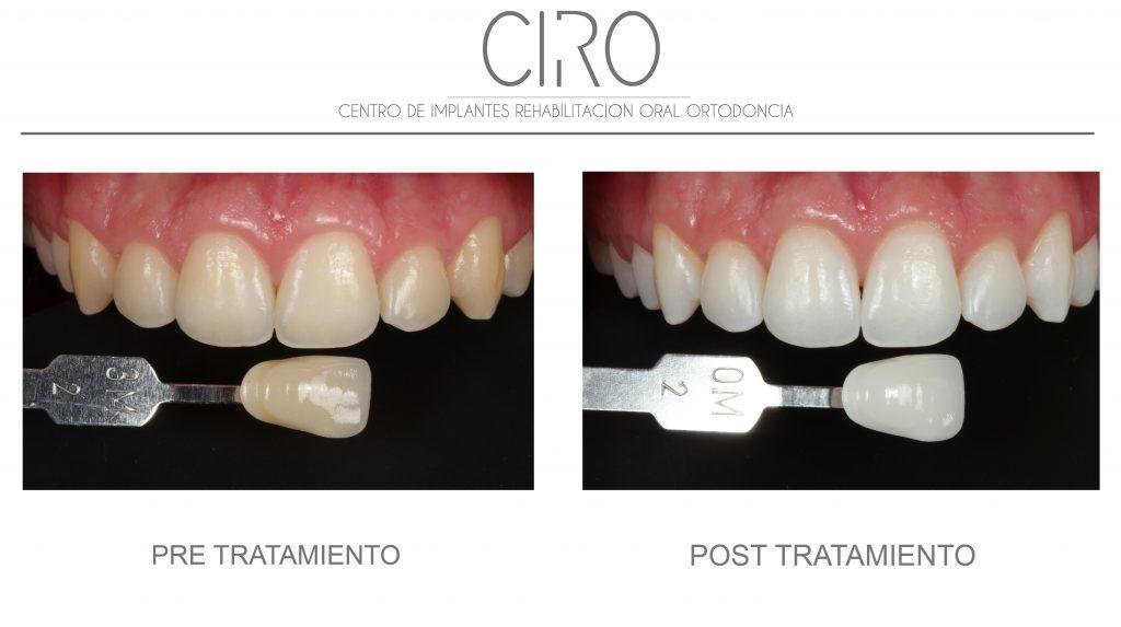 Blanqueamiento combinado post-ortodoncia - Dra. Isabel Giráldez de Luis