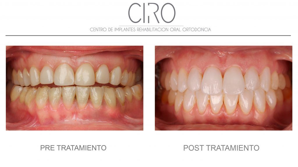 Rehabilitación completa: carillas e incrustaciones (Dr. David Jiménez) y tratamiento de encías (Dra. Mª José Jiménez)