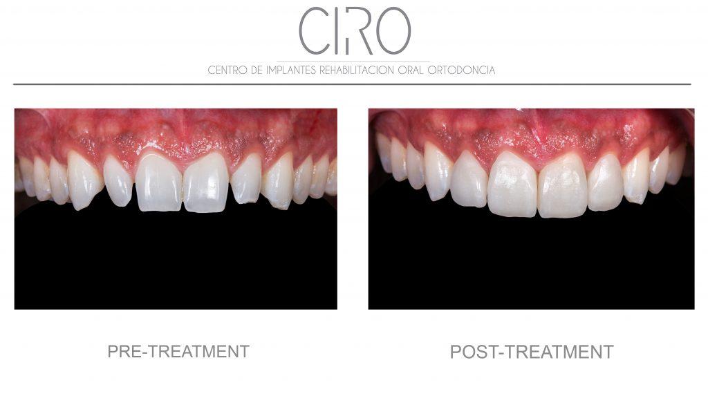 Dental aesthetics - Case 2