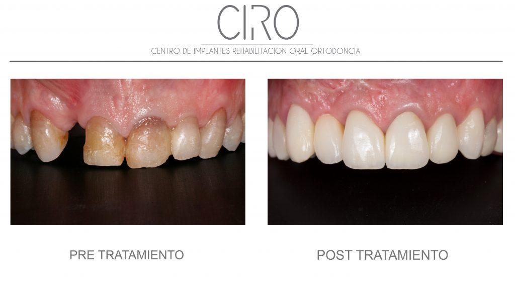 Rehabilitación completa: carillas y coronas  - Dr. David Jiménez García
