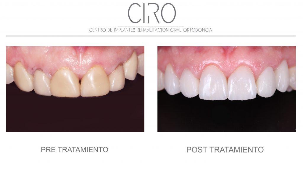 Cambio de corona de implantes (Dr. Jaime Jiménez), tratamiento de encías (Dra. Mª José Jiménez) y carillas (Dr. David Jiménez)