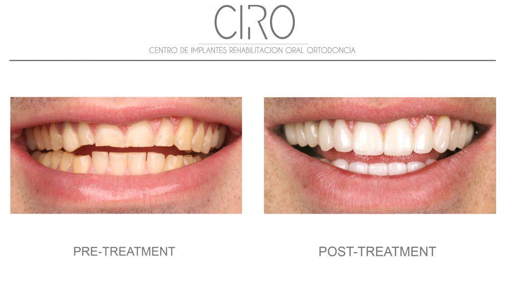 Dental aesthetics - Case 3