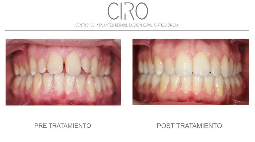 Caso tratado con ortodoncia invisible (Invisalign) - 13 meses de tratamiento. Dra. Silvia Jiménez García