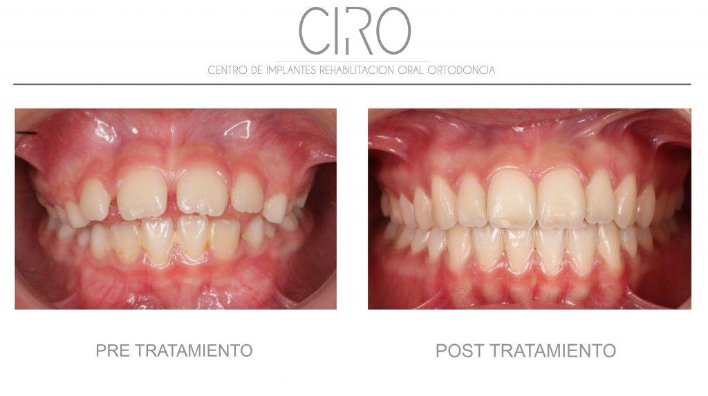 Caso tratado con ortodoncia funcional y posteriormente Invisalign -  Dra. Silvia Jiménez García