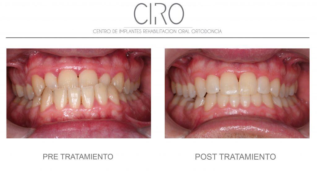Caso tratado con ortodoncia invisible (Invisalign) - 18 meses de tratamiento. Dra. Silvia Jiménez García