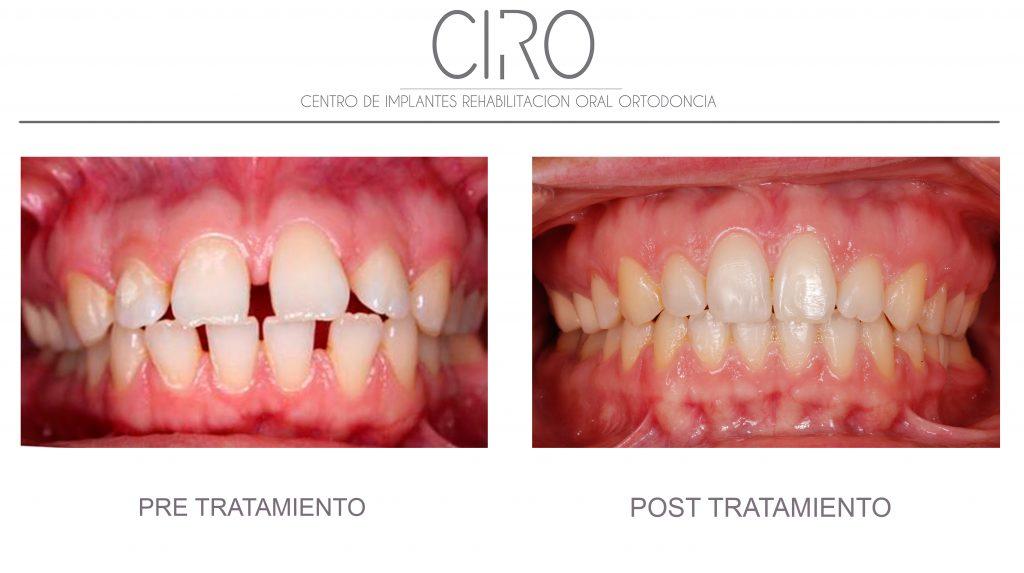 Caso tratado con ortodoncia invisible (Invisalign) - 15 meses de tratamiento. Dra. Silvia Jiménez García