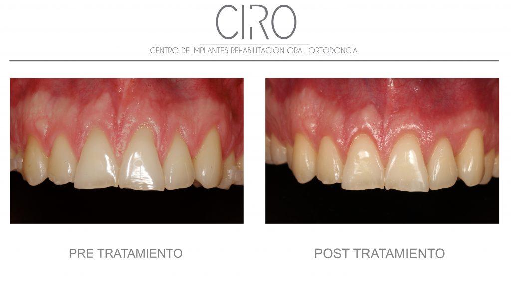 Periodoncia 3