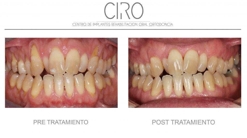Periodoncia 2