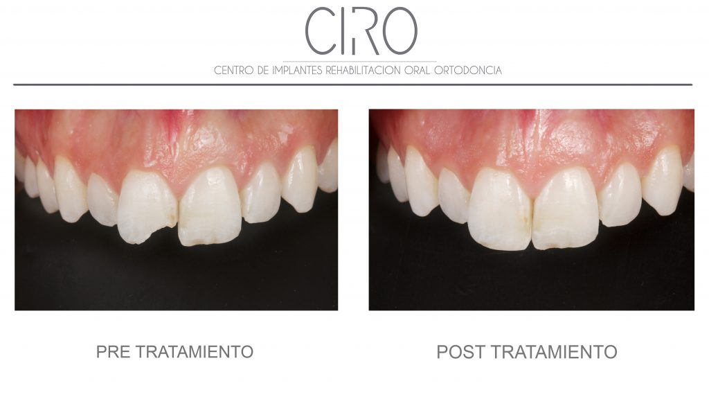 Restablecimiento de fragmento dental tras traumatismo - Dra. Isabel Giráldez de Luis