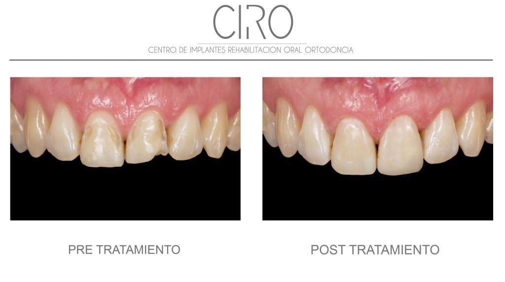 Reconstrucción con composite por erosión dental - Dra. Isabel Giráldez de Luis