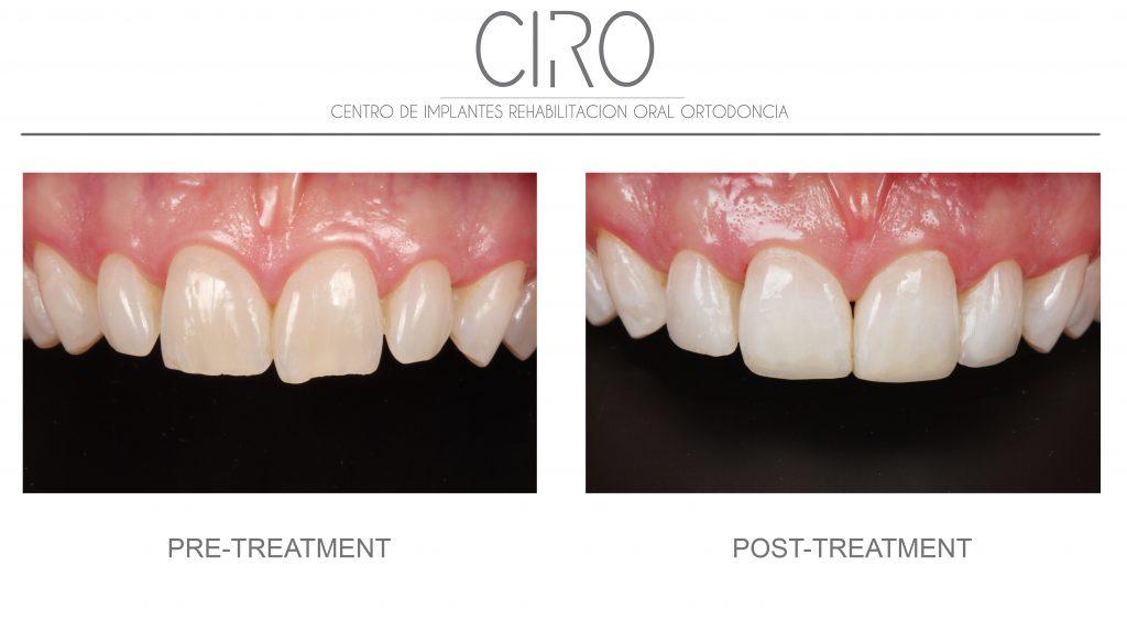 Conservative dentistry - Case 2
