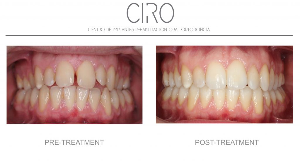 Invisalign (Invisible orthodontics) - Case 2