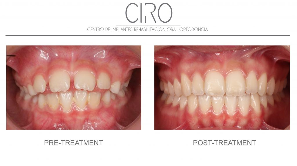 Invisalign (Invisible orthodontics) - Case 3