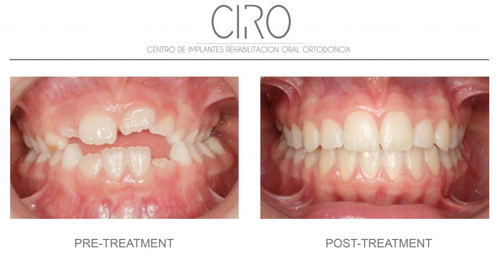 Invisalign (Invisible orthodontics) - Case 4