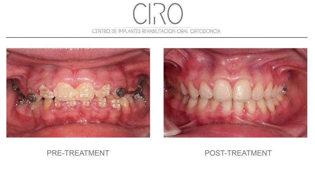 Periodontics/gums - Case 4
