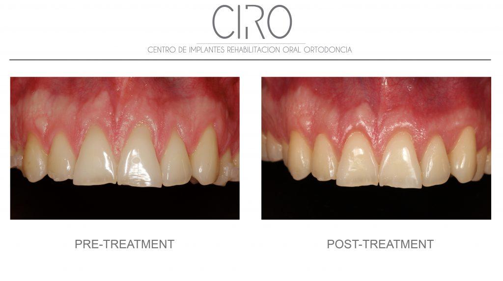 Periodontics/gums - Case 3