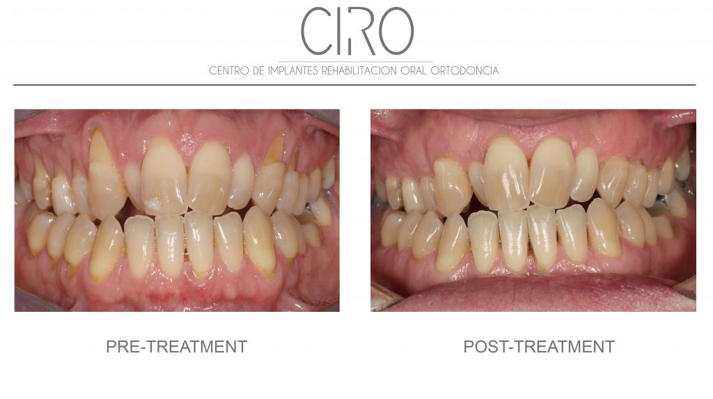 Periodontics/gums - Case 2