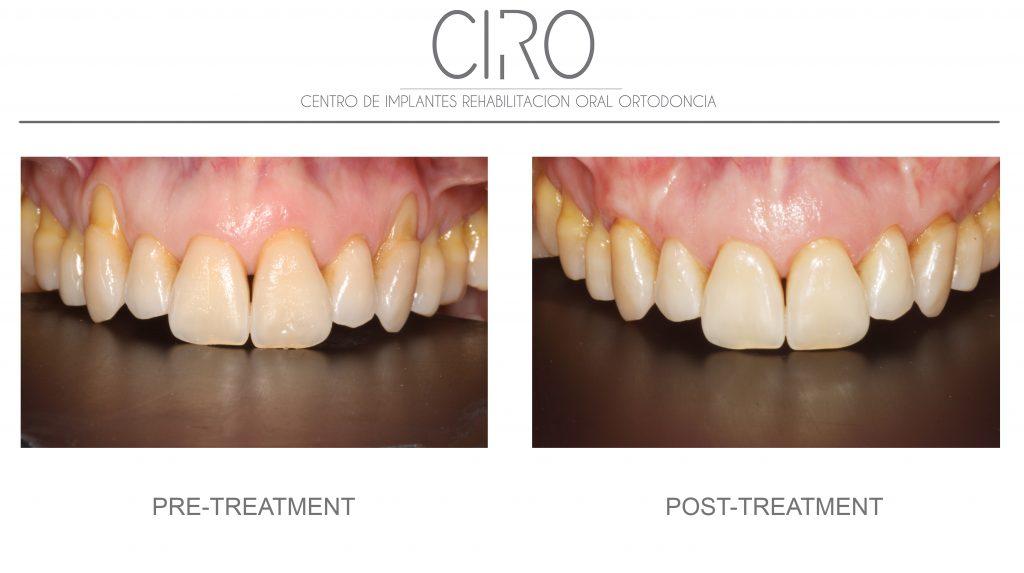 Periodontics/gums - Case 1