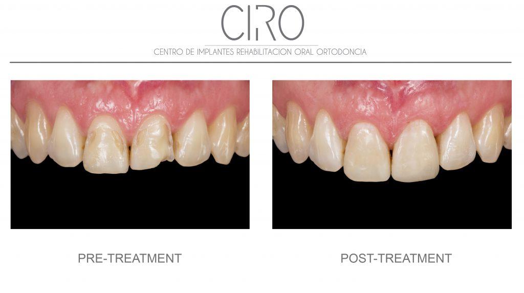 Conservative dentistry - Case 3