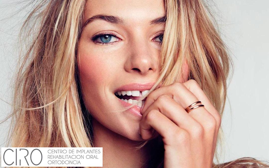 Diastemas o separación entre dientes: ¿tiene corrección?