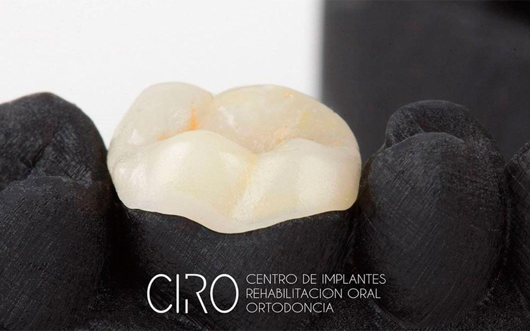 ¿Qué son las incrustaciones dentales? Indicaciones y ventajas