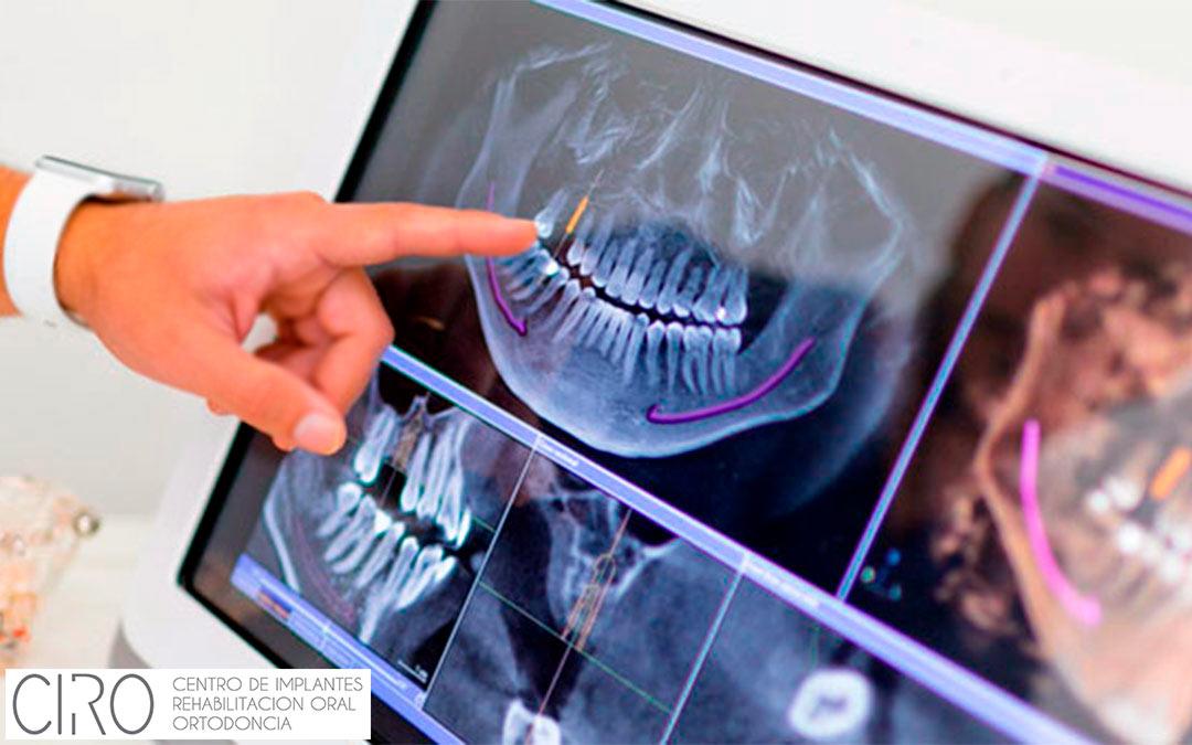 Última tecnología en Implantes Dentales en Clínica CIRO