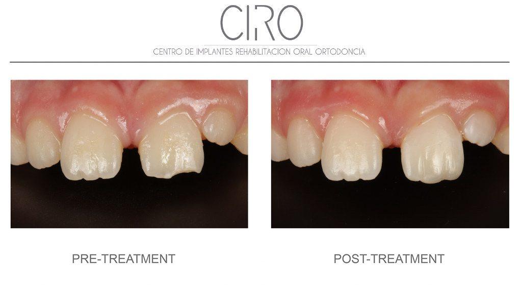 caso-1-odontopediatria-english