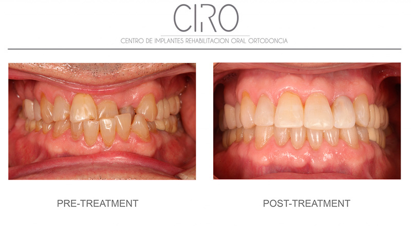 caso-clinico-invisalign-ciro-english