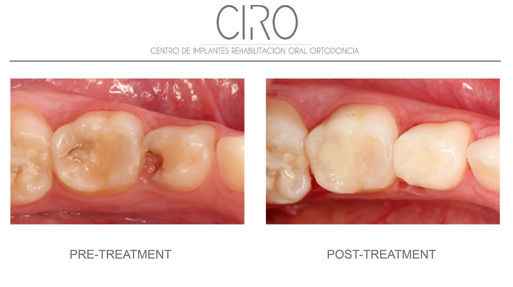 caso2-odontopediatria-english