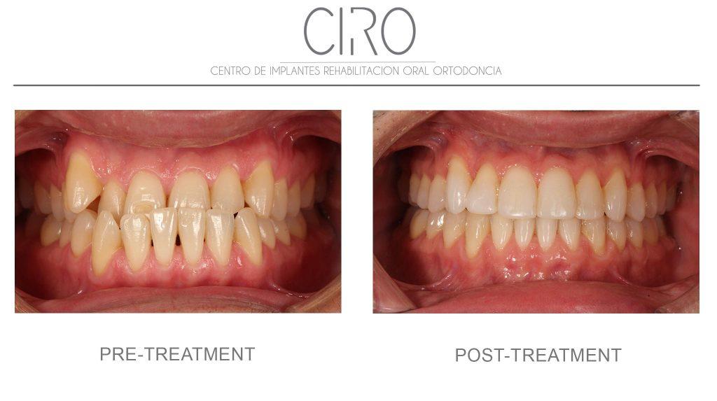 ortodoncia-caso-7-english