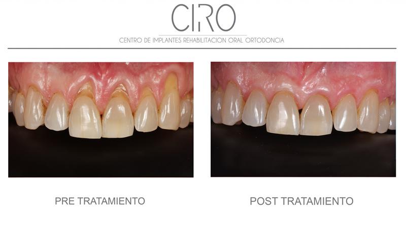 tratamiento-periodontal-en-madrid