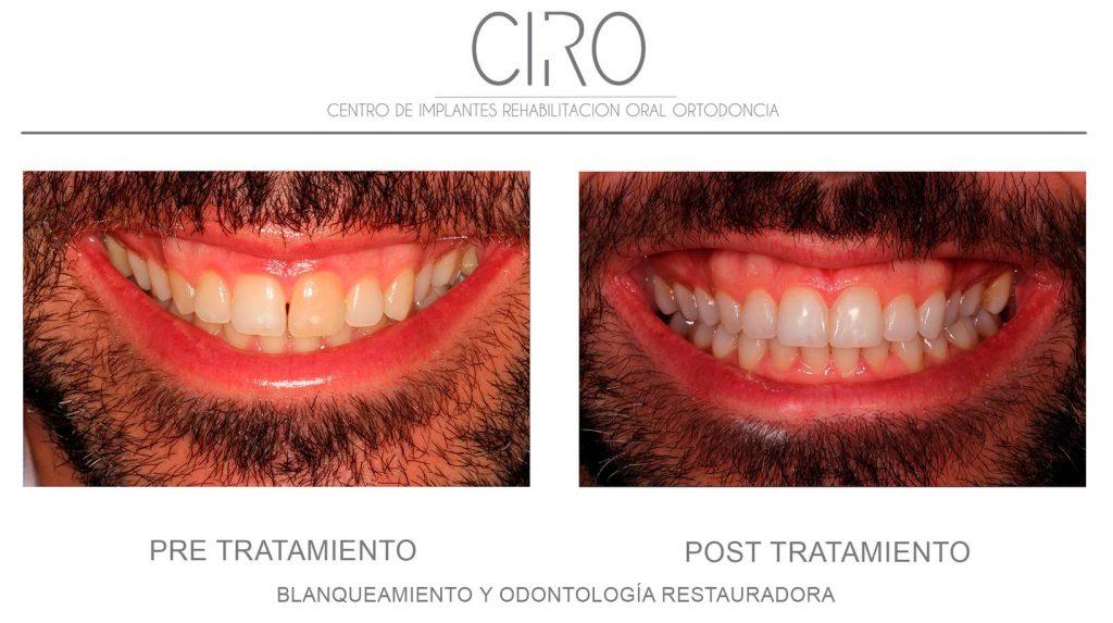 Blanqueamiento y Odontología Restauradora