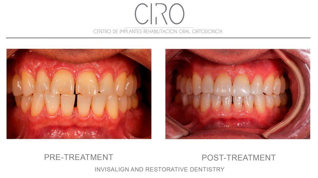 Invisalign and Restorative dentistry