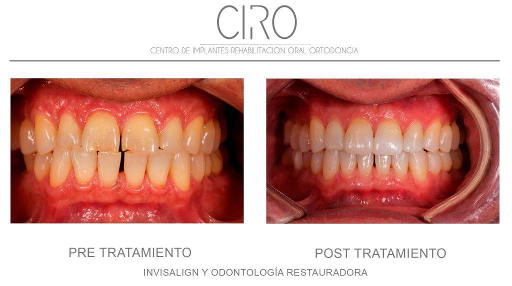 Invisalign y Odontología Restauradora