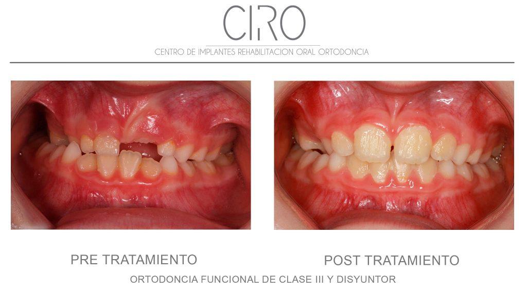 Ortodoncia funcional de clase III + disyuntor (duración total de 16 meses)