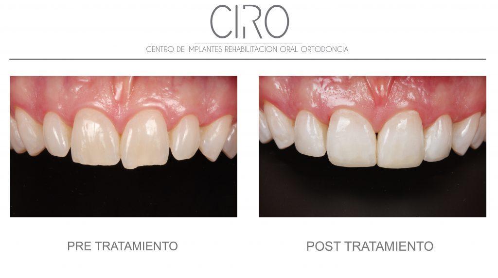 Reconstrucción con composite de bordes incisales post-ortodoncia - Dra. Isabel Giráldez de Luis