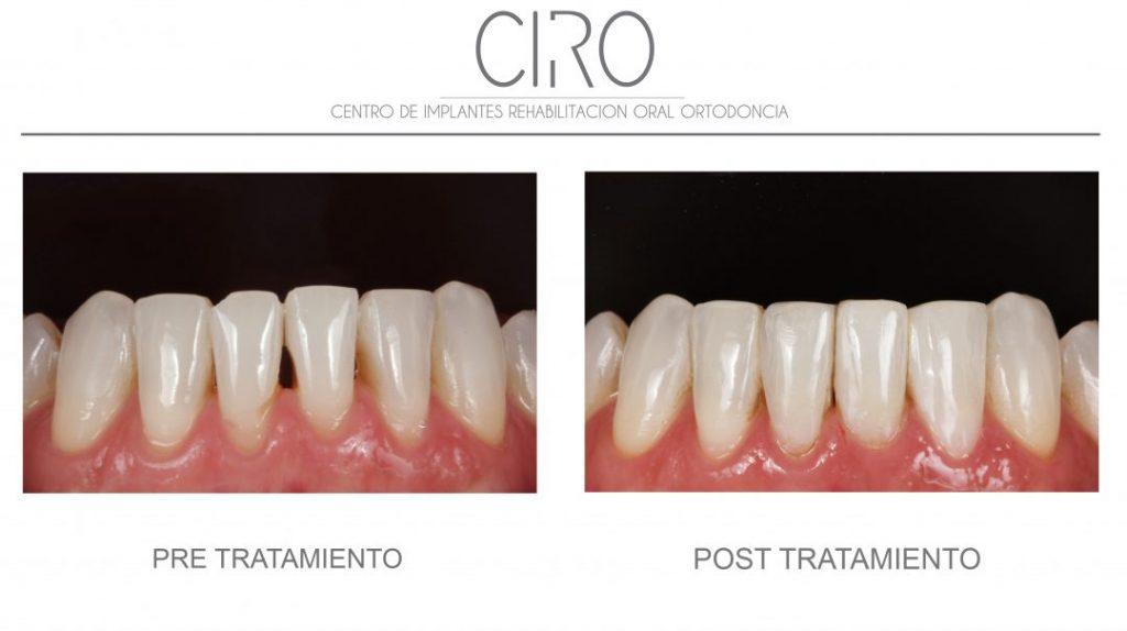 Cierre de espacios interdentales con composite post-ortodoncia - Dra. Isabel Giráldez de Luis