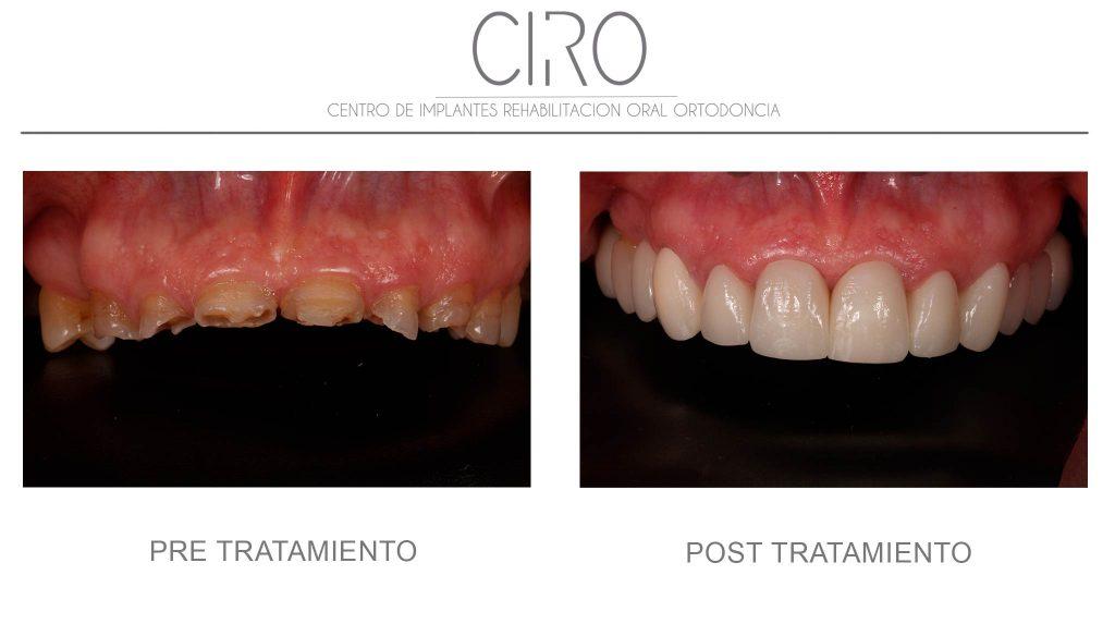 Tratamiento de estética dental - Dientes desgastados